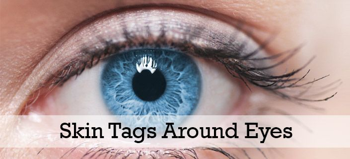#Skin Tags Around Eyes – Removing* These Benign Skin Growths Efficiently https://www.consumerhealthdigest.com/beauty-skin-care/eye-skin-tags-removal.html?utm_content=buffer851d9&utm_medium=social&utm_source=pinterest.com&utm_campaign=buffer