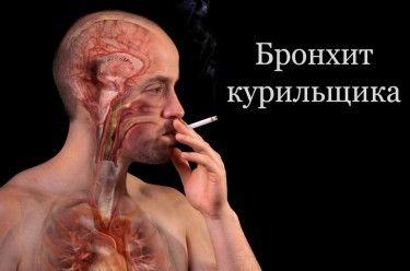 Вы узнаете: Что такое бронхит курильщика. Симптомы и лечение, осложнения бронхита курильщика. К чему ведет отказ от курения. Лечение в домашних условиях.