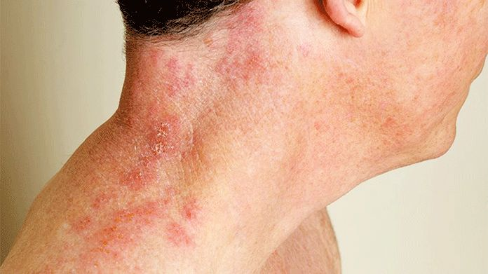 herpes zoster syn shingles primary care dermatology
