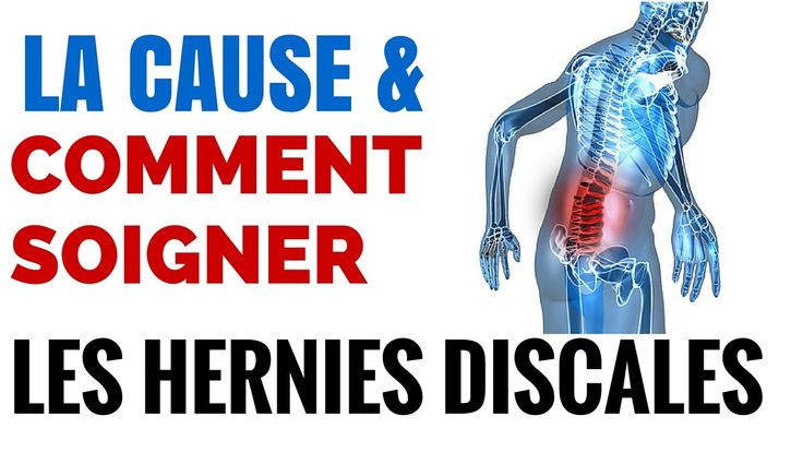Hernie Discale: Symptomes et Causes