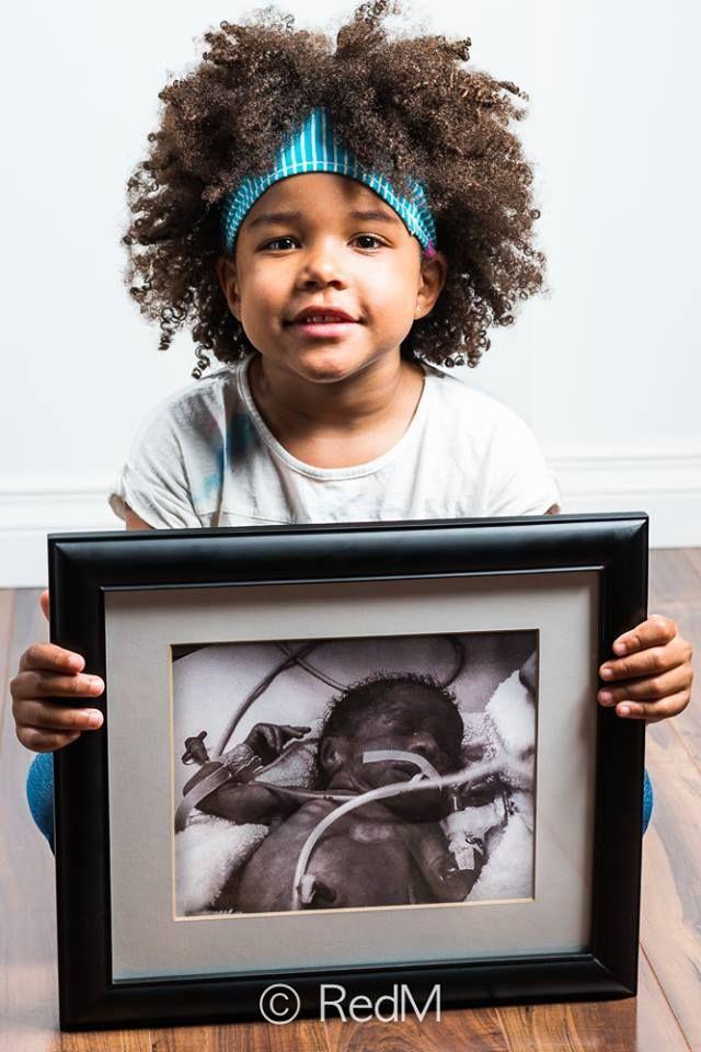 Bebés prematuros antes y después en fotos | Blog de BabyCenter