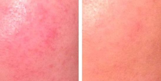 How to Get Rid of Acne Redness? (Fast & Naturally)