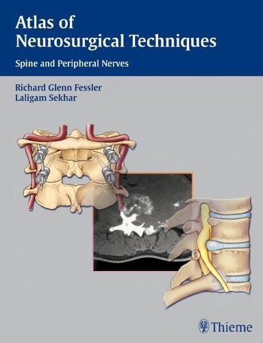 Atlas of Neurosurgical Techniques: Spine and Peripheral Nerves by Richard Glenn Fessler, http://www.amazon.com/dp/0865779872/ref=cm_sw_r_pi_dp_rJWTrb0FYT0N1