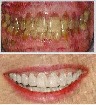 Tetracycline Stained Teeth Wiki
