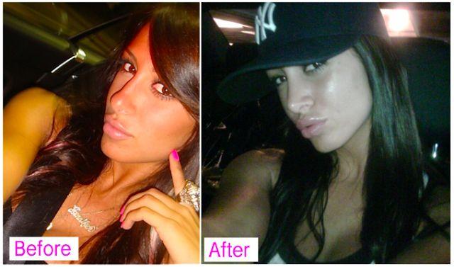 jennifer stanos blog plastic surgery my journey nip