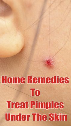 4 Effective Home Remedies To Treat Pimples Under The Skin