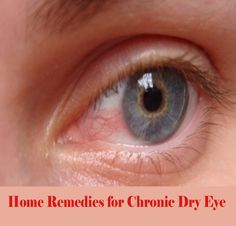 Home Remedies for Ch