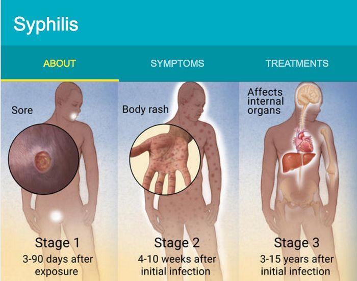 Syphilis Symptoms Transmission Syphilis Symptoms