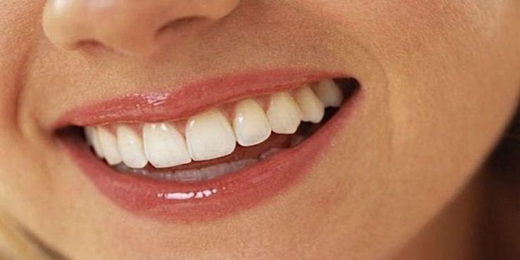 Kamień nazębny jest żółtawą płytką, która gromadzi się na zębach i twardnieje w szczególności w pobliżu dziąseł, nie tylko wpływając na zdrowie jamy ustnej, ale również dając nieestetyczny wygląd.