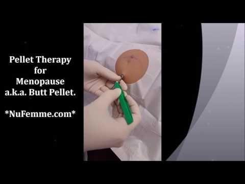 Watch a Hormone Pellet Insertion Procedure ~ Pellet Therapy for Menopause. . . . . . #Women #Hormones #Menopause #HotFlash #Aging #BHRT #Bioidentical #HormoneTherapy #PelletTherapy #TreatingMenopause #HormoneReplacement #FeelBetter #Testosterone #WeightLoss #SleepBetter #WomensClinic #Milwaukee