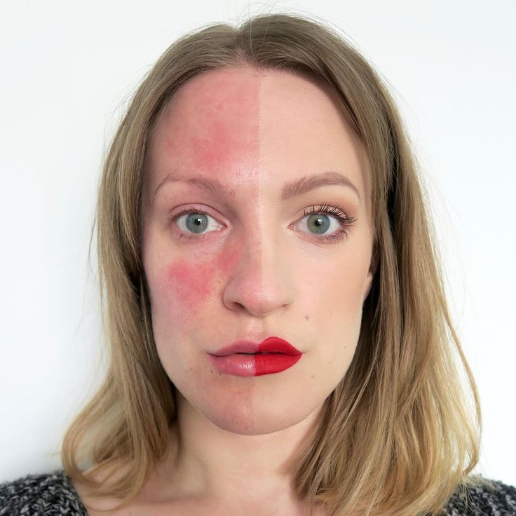 Rosacea FAQS - Everything You Ever Wanted To Know But Were Afraid To Ask // Talonted Lex