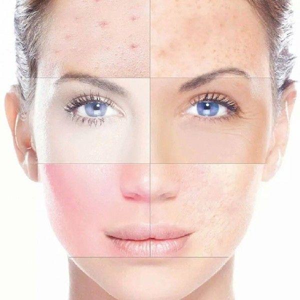 Qual dos 16 tipos de pele é o seu? pt.2| Sensível ou Resistente?