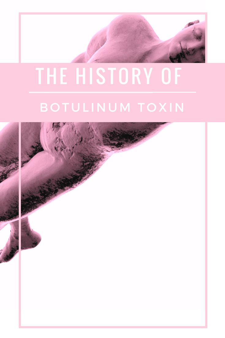 The History of Botulinum Toxin | A3sthetics (scheduled via http://www.tailwindapp.com?utm_source=pinterest&utm_medium=twpin)