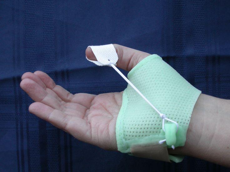 Dynamic Thumb splint made of Turbocast www.ptsonline.com