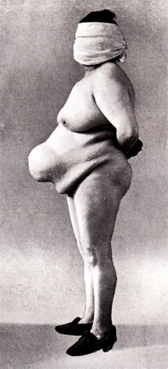 """""""doppia ernia ombelicale in donna di 31 anni"""", italy, 1900s ( Double umbilical hernia in women of 31 years old)"""