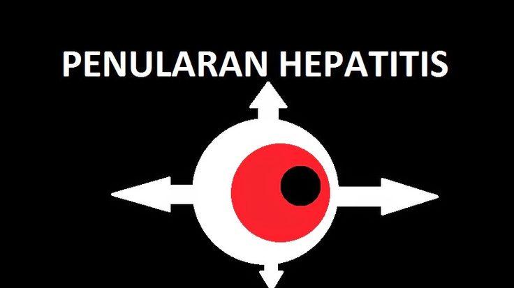 Penularan Hepatitis
