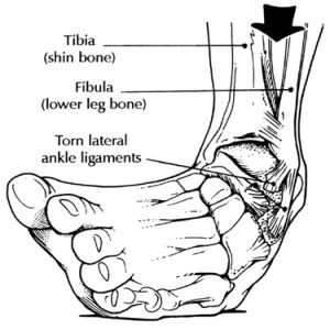 How To Treat A Sprained Ankle...