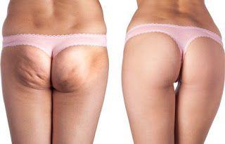 7 conseils que vous devez appliquer si vous voulez éviter la cellulite: pour éviter l'apparition de la cellulite il faut mettre l'accent sur les méthodes préventives qui empêchent les progrès des stades plus visibles