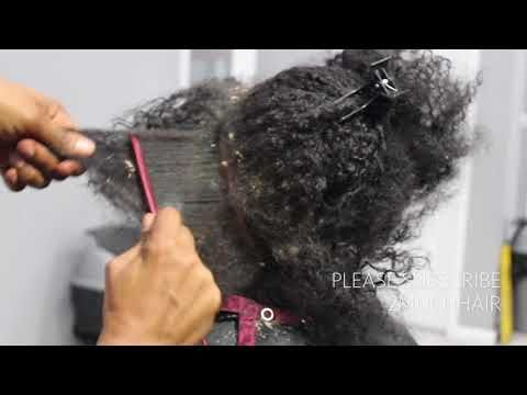 18) Picking BIG scalp flakes Psoriasis and Dermatitis SEW IN