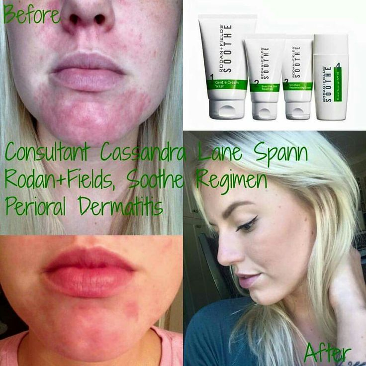 Clear Up Perioral Dermatitis! This Condition Is So Hard To