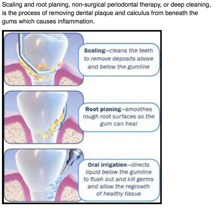 Idea By Periodontal Specialists Of Mon On Healthy Teeth