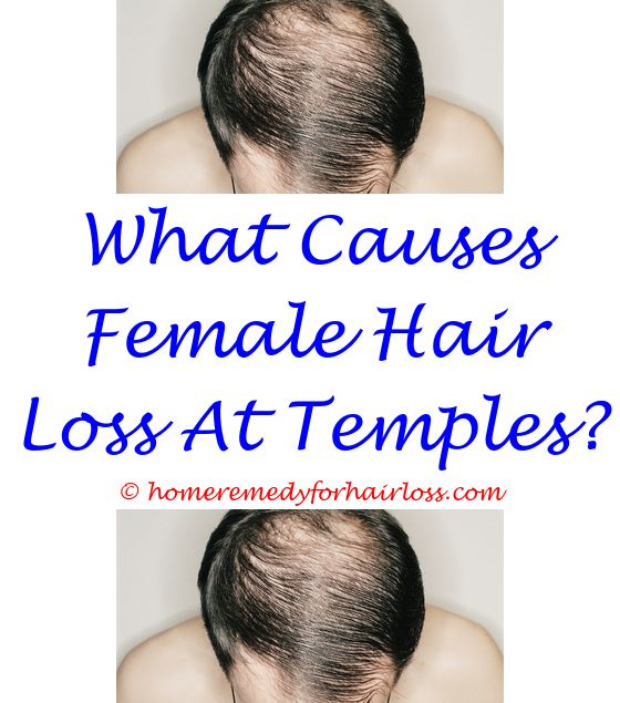 15 best Stress Hair Loss images on Pinterest | Anti hair loss ...