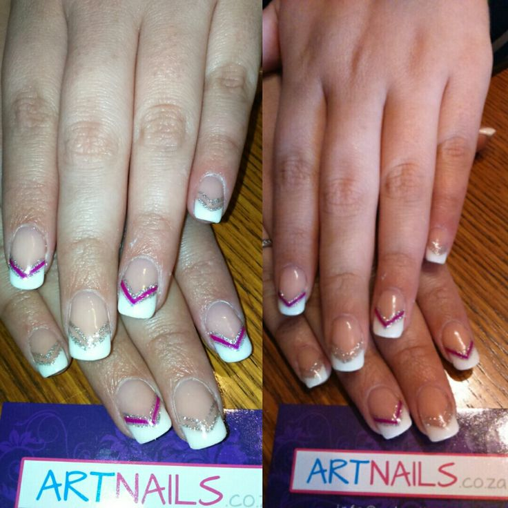 French triangle acrylic nails with silver glitter and purple pink nail art stripes nails I did