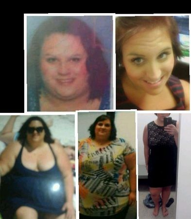At 27 years old, I weighed 486 pounds and decided to have Gastric Bypass Surgery.