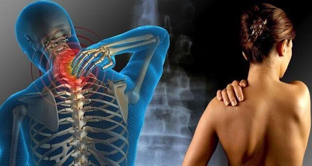 Attualmente, la fibromialgia colpisce il 4% de