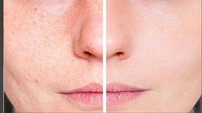Remedios caseros para quitar las marcas del acné
