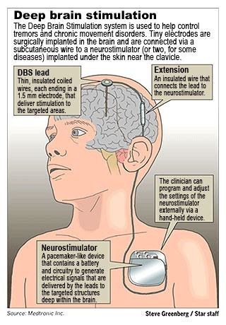 99 Best Images About Spasmodic Torticollis Aka Cervical
