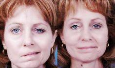 Qué es la parálisis facial y soluciones - Vida Lúcida