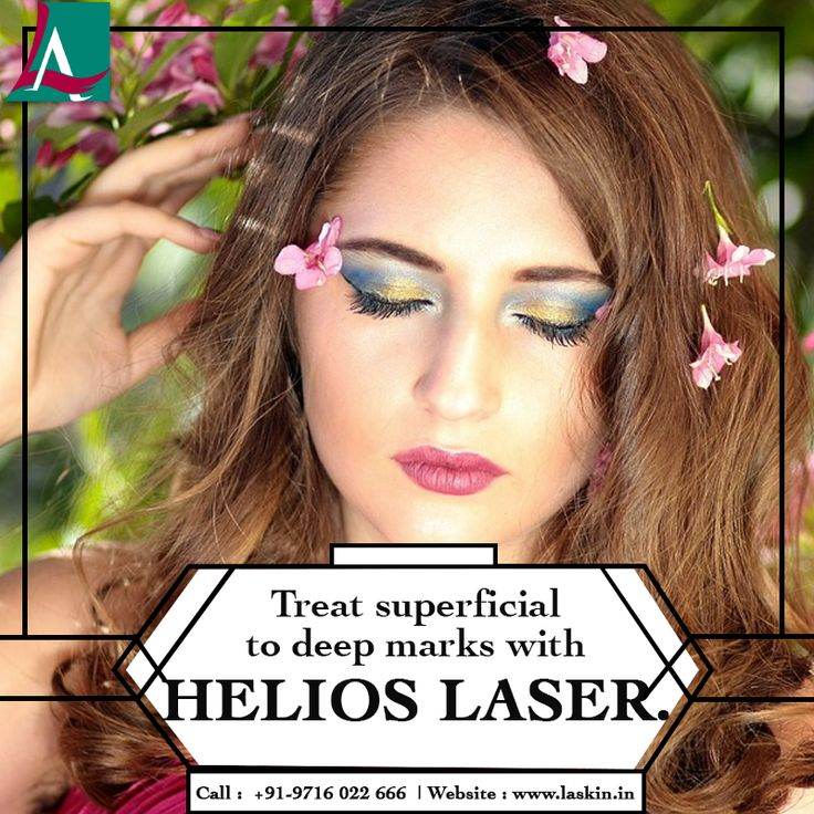 Pave way to a glowing and even skin with 4G Helios laser treatment. Say bye-bye to all the pigmentation problems like freckles, melasma, acne marks etc with this ultra advanced technology with no downtime. Call +919716022666 to book your Helios Laser session today. #LASkin #Aesthetic #Clinic #Helios #Laser #Treatments