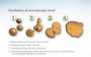 Cellulite reduction and Fat Cavitation in Perth - How does it work? - http://www.fat-cavitation-perth.com.au/cellulite-reduction-and-fat-cavitation-in-perth-how-does-it-work/