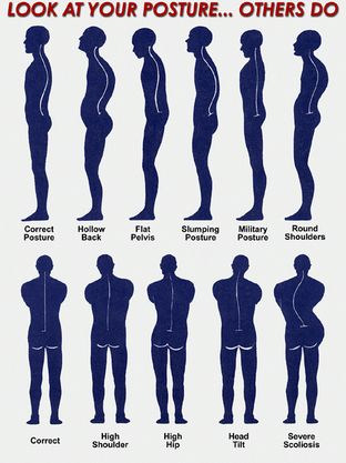 Look at your posture... others do! #improveposture #BackJoy