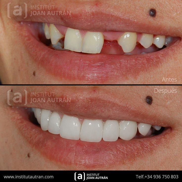Carillas dentales Top Smile® exclusivas en Institut Joan Autrán