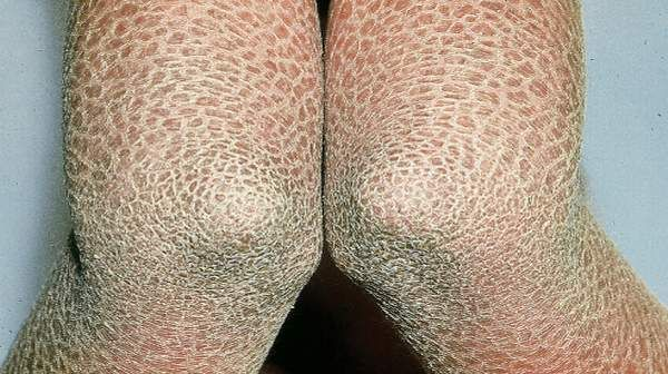 Ichthyosis  Kid Itchy Patches On Skin