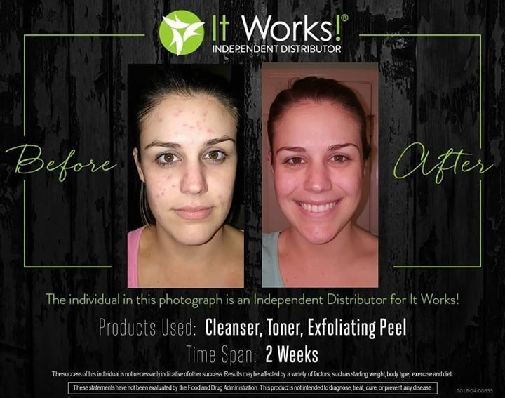"An amazing before and after result of our cleanser and/or exfoliating peel!  This is Taylor an It Works distributor! Taylor says ""I've been on hormones for fertility treatment for the past 2 months. One of the side effects is acne. I had a terrible flare up a few weeks ago. These products have given me back my confidence!"" She used our cleanser in the morning and night along with our exfoliating peel for 2 weeks. Message me now and I will create a skincare routine that's perfect for you…"