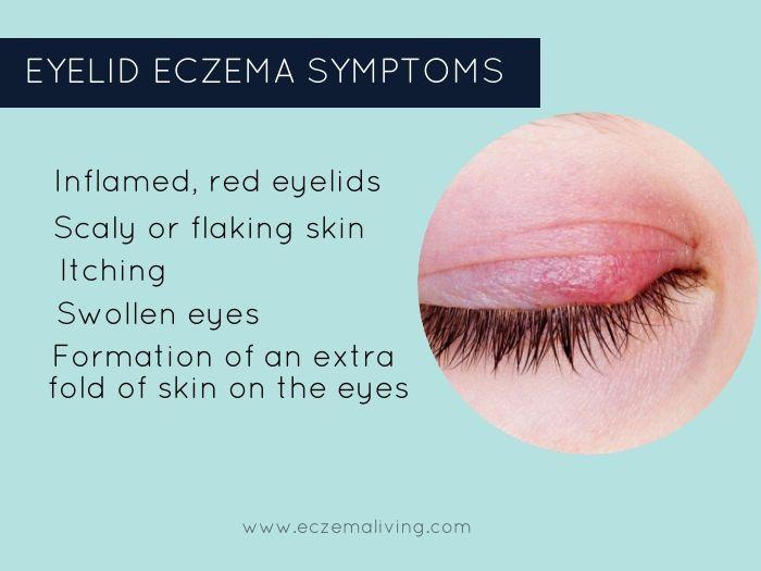 Eyelid Dermatitis – How to Get Rid of Eczema on Eyes? | Eyelid dermatitis,  Eczema on eyelids, Eczema symptoms