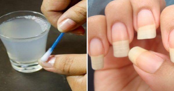 Как быстро отрастить ногти, которые никогда не сломаются: поможет простое средство из 4 компонентов!