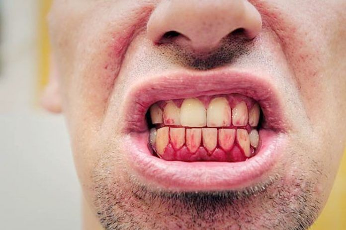 How To Deal With My Bleeding Gums?   As per the American Academy Of Periodontology, 80% adult population reports some level of the periodontology. Surprisingly, just 10% of the sufferers are aware of it.  Read through to be aware of the causes, treatment and remedies for bleeding gums.   #BleedingGums #HomeRemedies