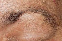Traitement pour l'alopécie des sourcils et des cils