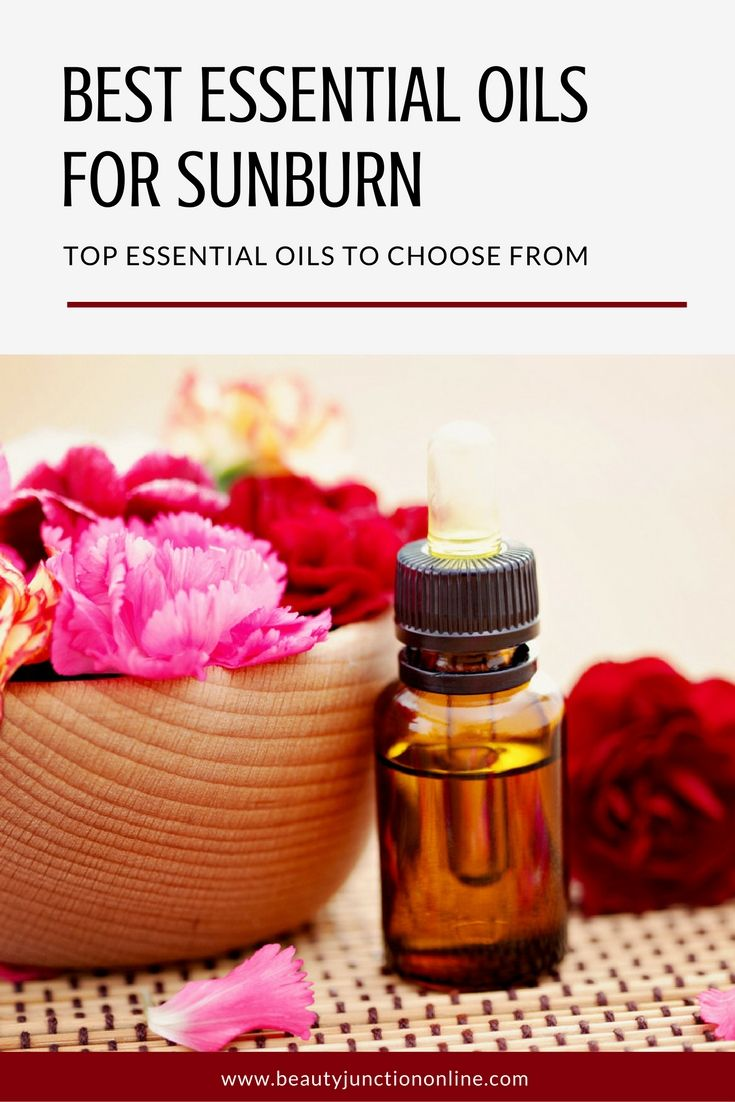 Best essential oil remedies for sunburn relief
