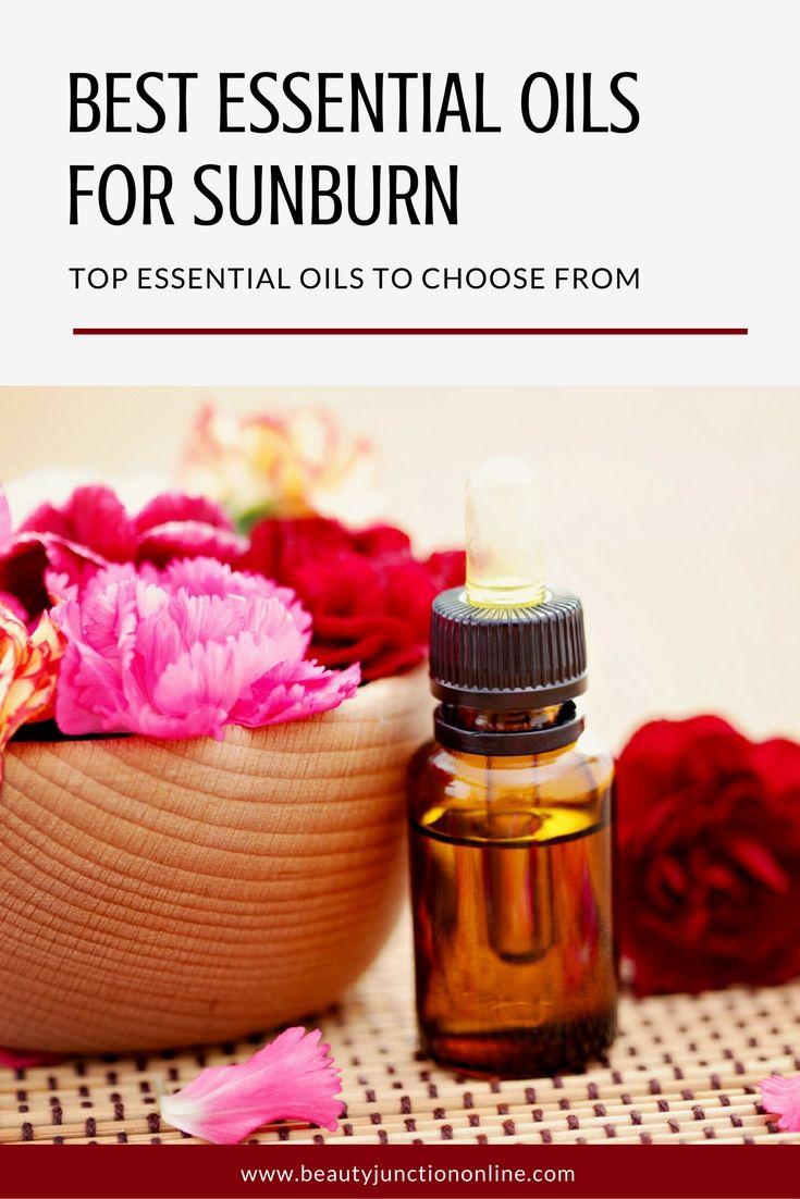 Best essential oil remedies for sunburn relief