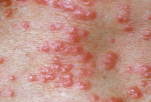Scabies natural cure...bathe with neem oil soap, make a mixture of jojoba oil 4 oz and 1/3 oz of pure clove essential oil and rub it over your body, add clove oil to your shampoo (dont get in eyes) and add clove oil to launder your linens and clothes daily. You will be better in one week.