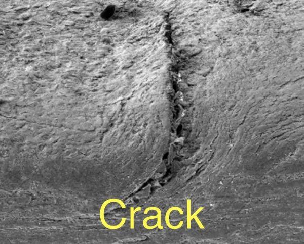 www.NailCareHQ.com Ridges in Nails - Microscopic photo