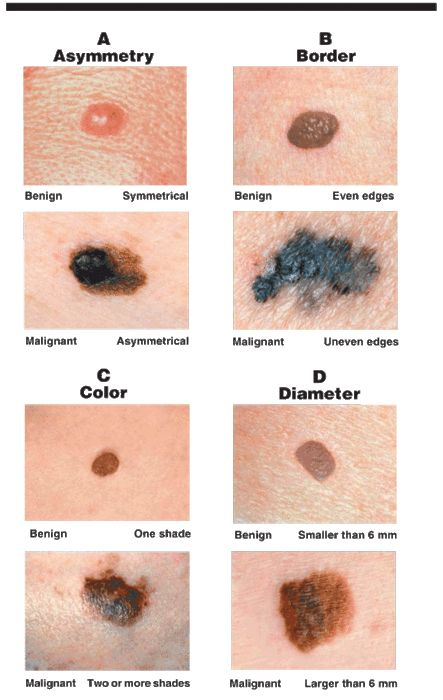 A review is always a good thing.  Characteristics of cancerous moles (OP)