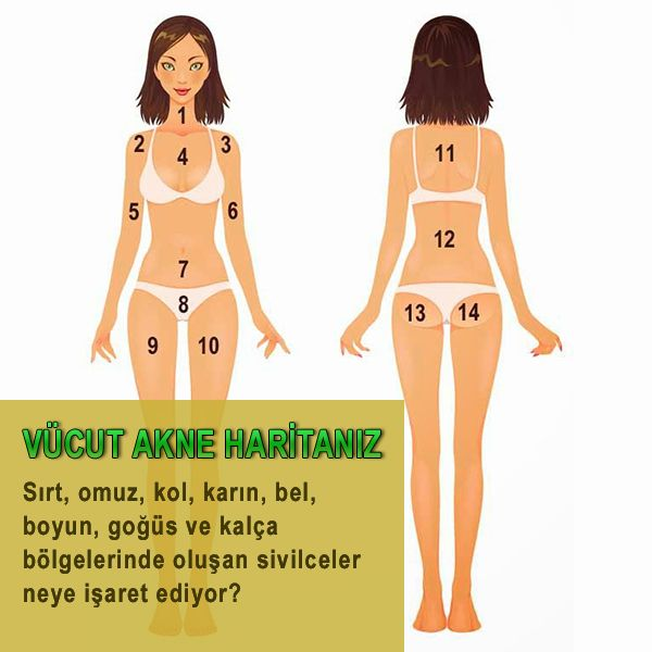 Vücut haritanız – Boyun, bel, omuz, göğüs bölgelerinde akne ve sivilceler neye işaret ediyor?