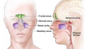 Paranasal Sinuses