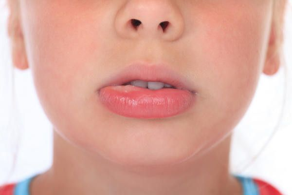 5 Home Remedies To Get Rid Of Lip Blisters